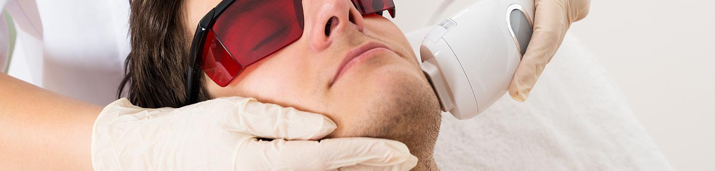 L'épilation définitive à la lumière pulsée du visage et de la barbe
