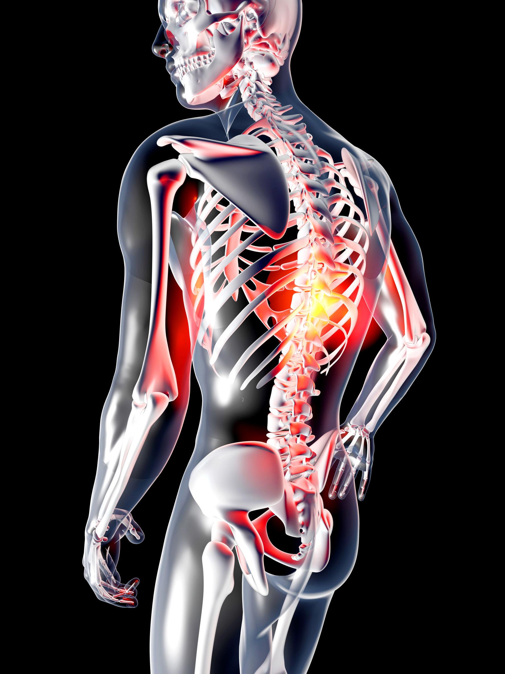 Le bilan postural