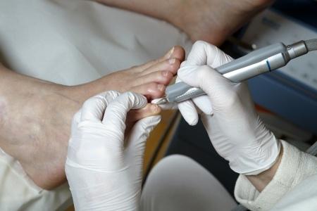 Pourquoi consulter un pedicure podologue