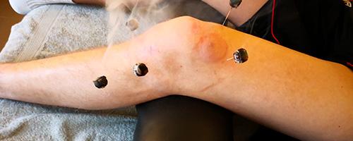 Le traitement par l'ostéo-étiopathie