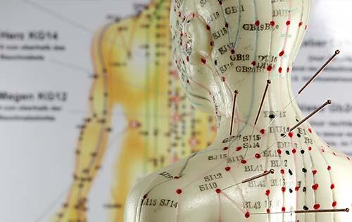 Les techniques liées à l'acupuncture