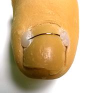 Les orthonyxies