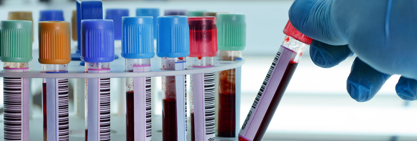 L'analyse sanguine en laboratoire