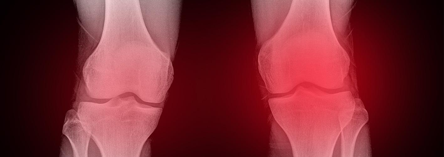 les genoux en « X »
